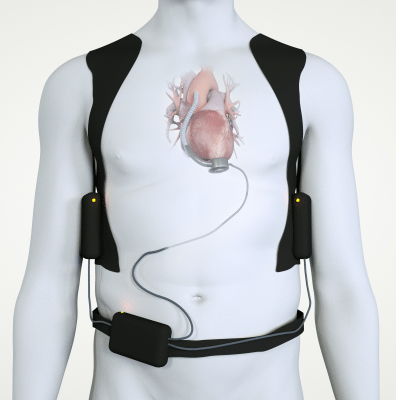 left ventricular assist device illustration